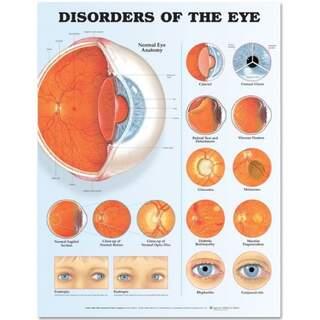 Augenerkrankungen laminiertes Poster (Erkrankungen des Auges)