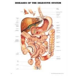 Erkrankungen des Verdauungssystems laminiertes Poster Deutsch