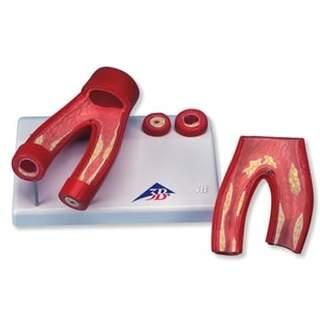 Atherosclerosis Modell mit Querschnitt der Arterie, zwei Teile