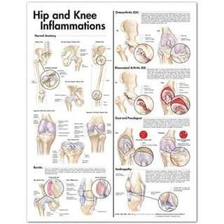 Entzündung der Hüfte und Knie laminierte Poster 51x66 cm mit Öse holes
