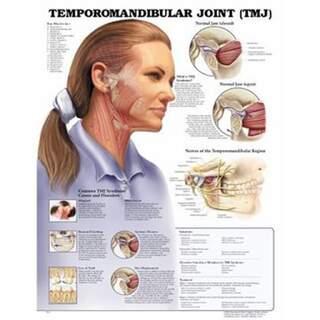 Temporomandibuläre Gelenkerkrankung (TMJ) laminiert Englisch