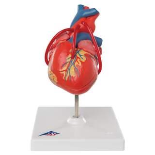 Herzmodell, das das Ergebnis nach einer Bypass-Operation anzeigt
