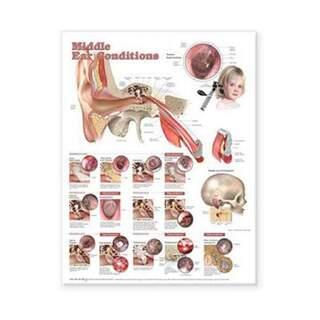 Krankheiten im mittelohrlaminierten Poster Englisch