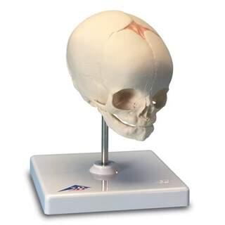 Kranie im fötalen Stadium (30 Wochen)