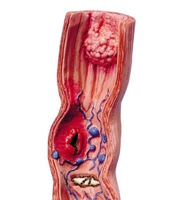 sår i matstrupen