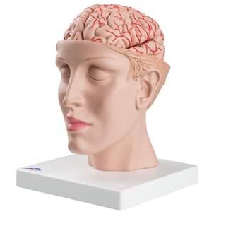 8-Split-Gehirn mit Arterien im Split-Kopf