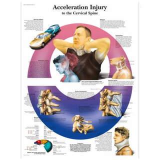 Anatomie Poster - WHIPLASH - Nackenverletzungen