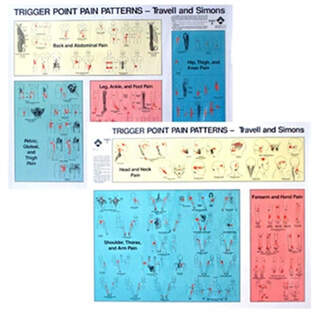 Triggerpunkte Platte | Schmerzmuster Set Travell & Simons