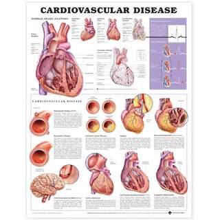 Laminiertes Poster zu Herz-Kreislauf-Erkrankungen in englischer Sprache